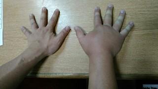 腫れた手.jpg